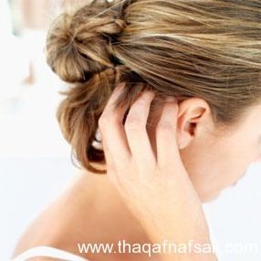 علاج قشرة الشعر بعشرة طرق مختلفة بالصور 2015