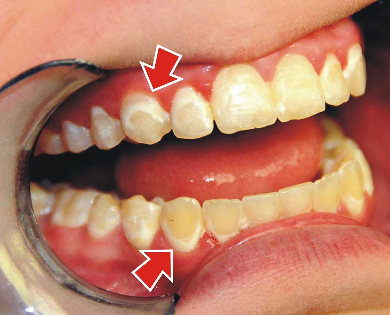 أطعمة تسبب بقع الأسنان احذرها و قلل منها