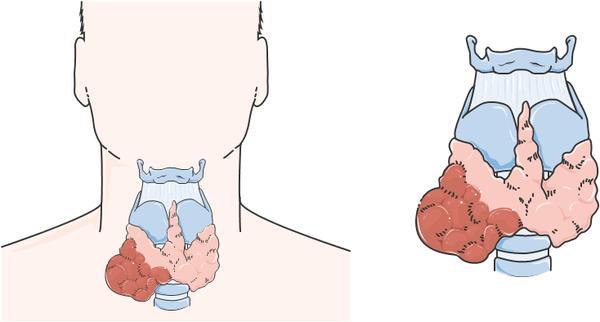 اسباب وعلاج الغدة الدرقية