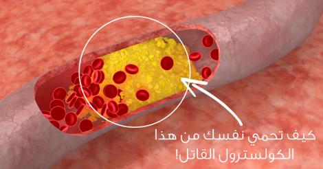 كيفية تقليل نسبة الكوليسترول في الدم