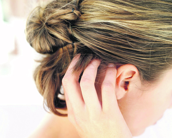 علاج الحكة في فروة الرأس بخلطات من الطب البديل %D8%B9%D9%84%D8%A7%D