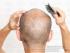 زيادة-كثافة-الشعر-للرجال