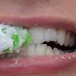 خطوات لتتمكن إزالة الأسنان وجعل بياضها ناصع إزالة-الجي�