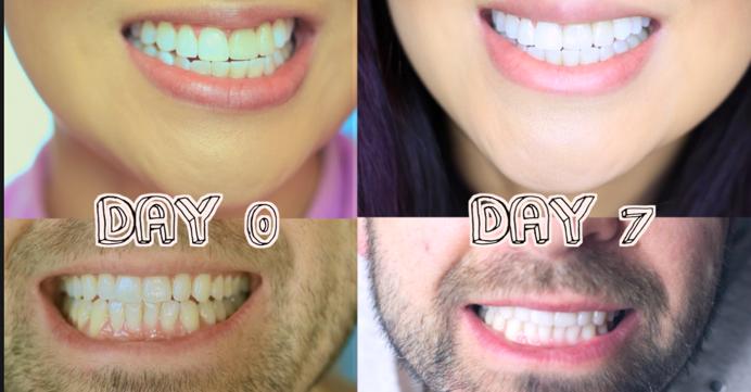 أربع خطوات لتتمكن من إزالة جير الأسنان وجعل بياضها ناصع