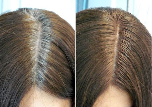 منع ظهور الشعر الابيض نهائيا بعلاجات منزليةوموسوعة كاملة عن علاجه والوقاية منه