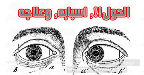 الحول-أسبابه-وعلاج-العين