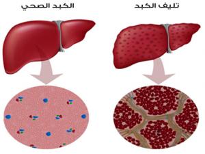 علاج-تليف-الكبد