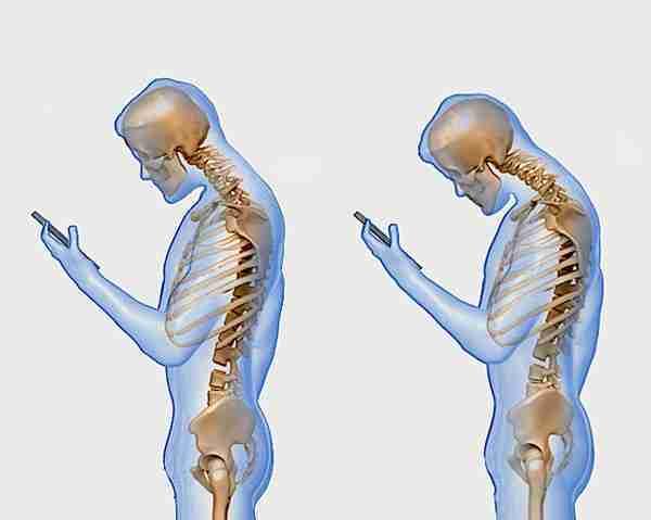 دراسة، مراجعة الرسائل النصية علي هاتفك المحمول تسبب ألام الظهر والرقبة Texting-Posture-Back