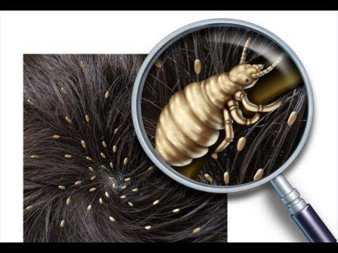 حشرات الشعر
