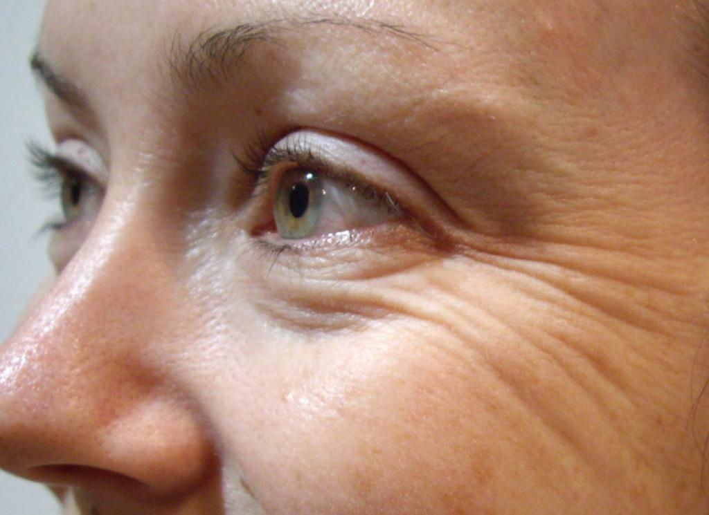 أسباب التجاعيد العين وعلاجها بطرق سهلة %D8%A7%D9%84%D8%AA%D