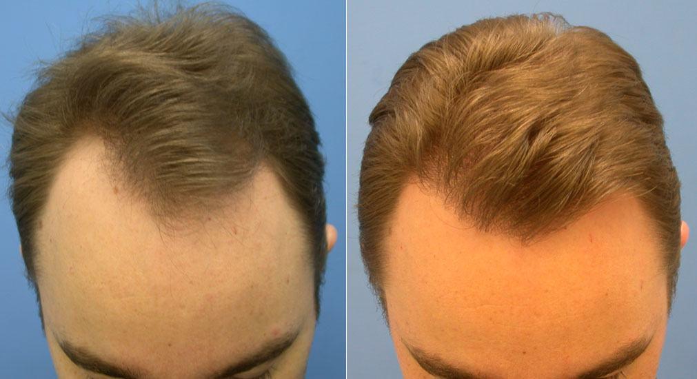 علاج تساقط الشعر بالقرنفل