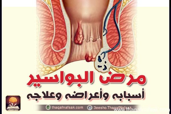 مرض البواسير أسبابه وأعراضه وعلاجه ثقف نفسك