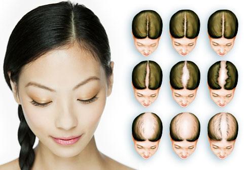 كيف اتخلص من مشكلة تساقط الشعر