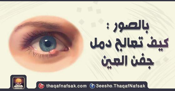 ألم العين 8 علاجات منزلية بسيطة لألم العين