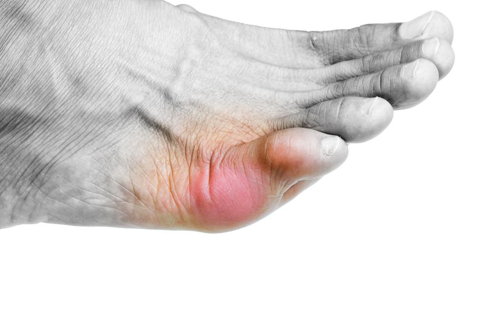 علاج تورم الاصابع