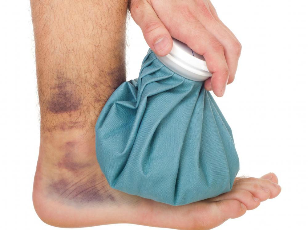 علاج الاصابات والكدمات