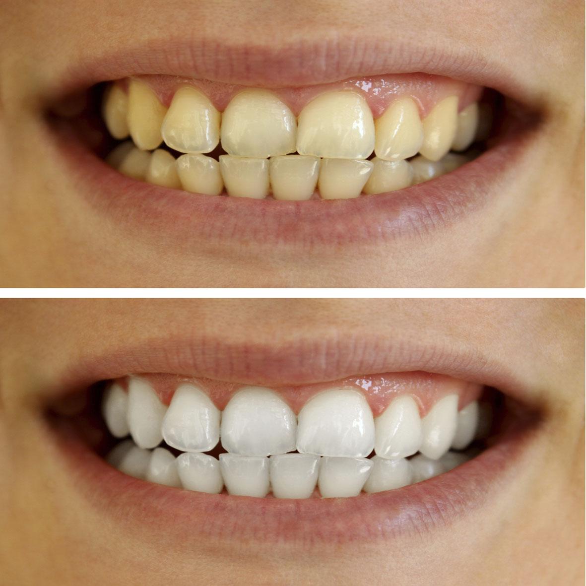 إصفرار الأسنان.png 2