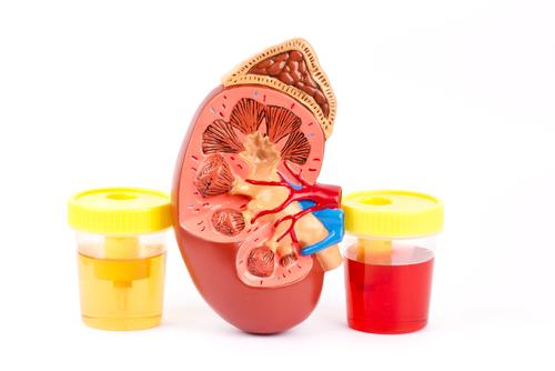 أسباب تبول الدم عند الأطفال و الرضع