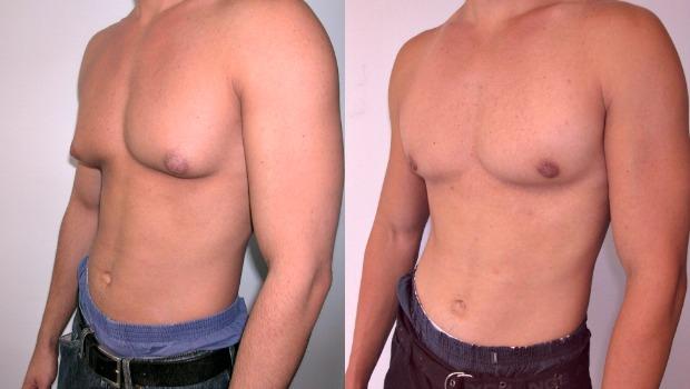 علاج ترهل الثدى عند الرجال
