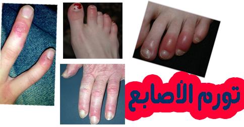 علاج تورم الاصابع في الشتاء
