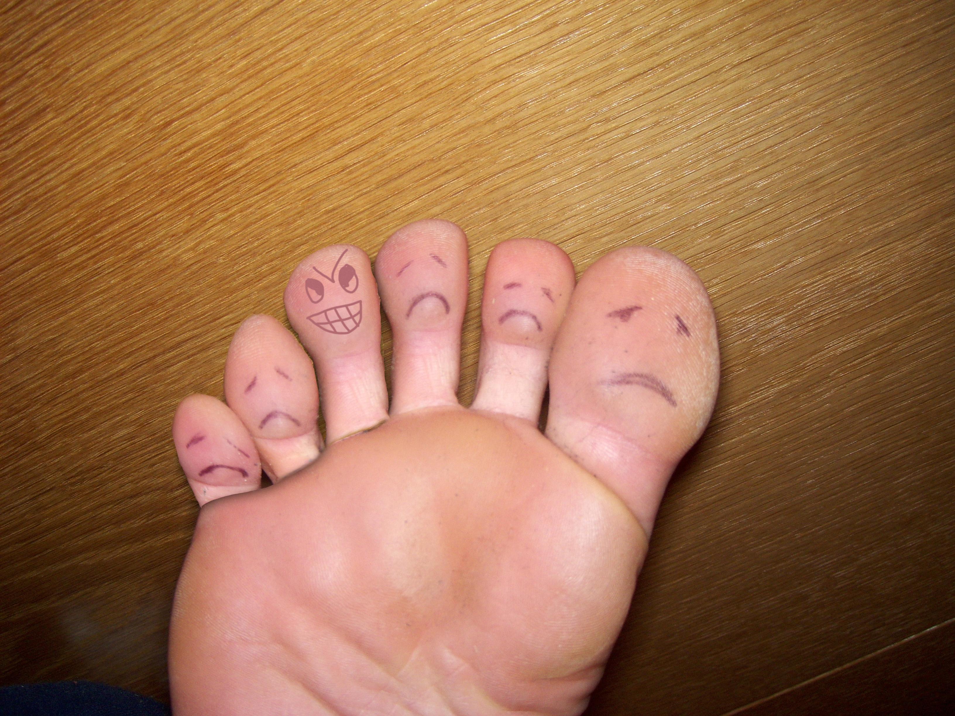 اليكم 10 طرق منزلية فعاله في علاج تورم الاصابع في الشتاء
