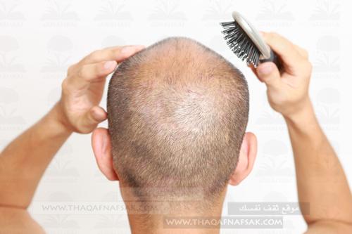 أهم 10 خطوات لزيادة كثافة الشعر للرجال ثقف نفسك