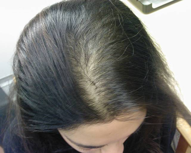 علاج الشعر الخفيف