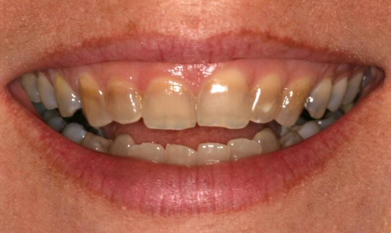 تصبغات الأسنان الأسباب و العلاج ثقف نفسك