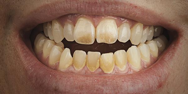تصبغات الأسنان 2