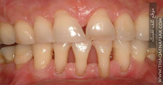 علاج تراجع أو انحسار اللثة التي تجعل الأسنان تبدو أكبر ثقف نفسك