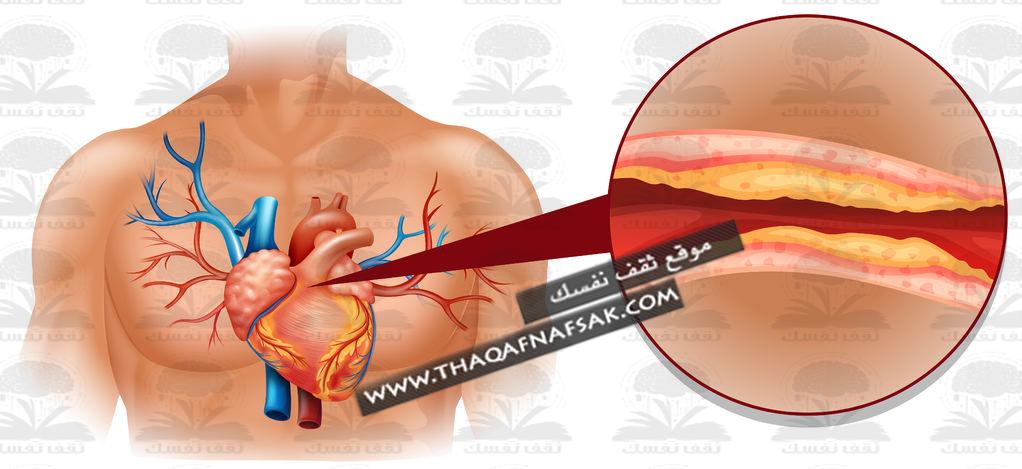 علاج الكولسترول المرتفع في الدم أكبر موسوعة مفيدة لك ثقف نفسك