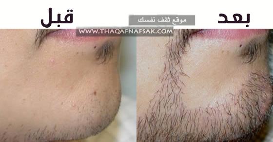 زيادة-شعر-اللحية-الخفيف