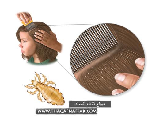 علاج-القمل-في-الشعر