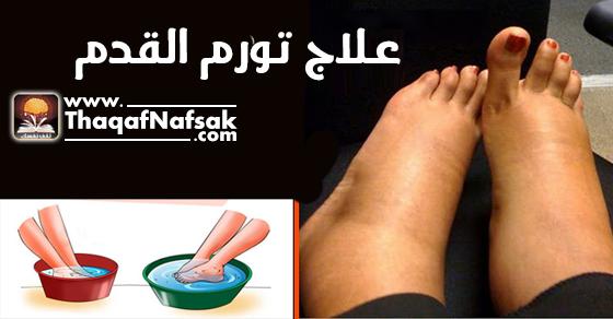 علاج أنتفاخ وتورم القدم أبرز الطرق الجديدة ثقف نفسك
