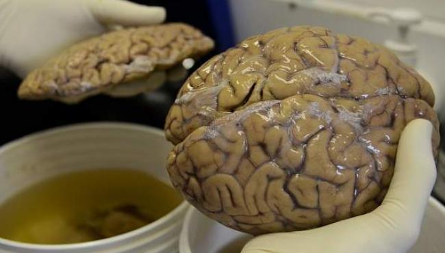 كيف تؤثر العلاقة الحميمة على المخ ثقف نفسك