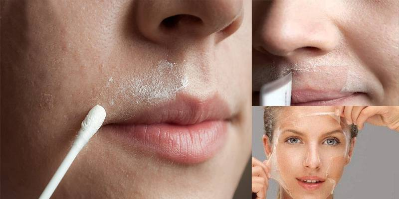إزالة الشعر الزائد من الوجه 2