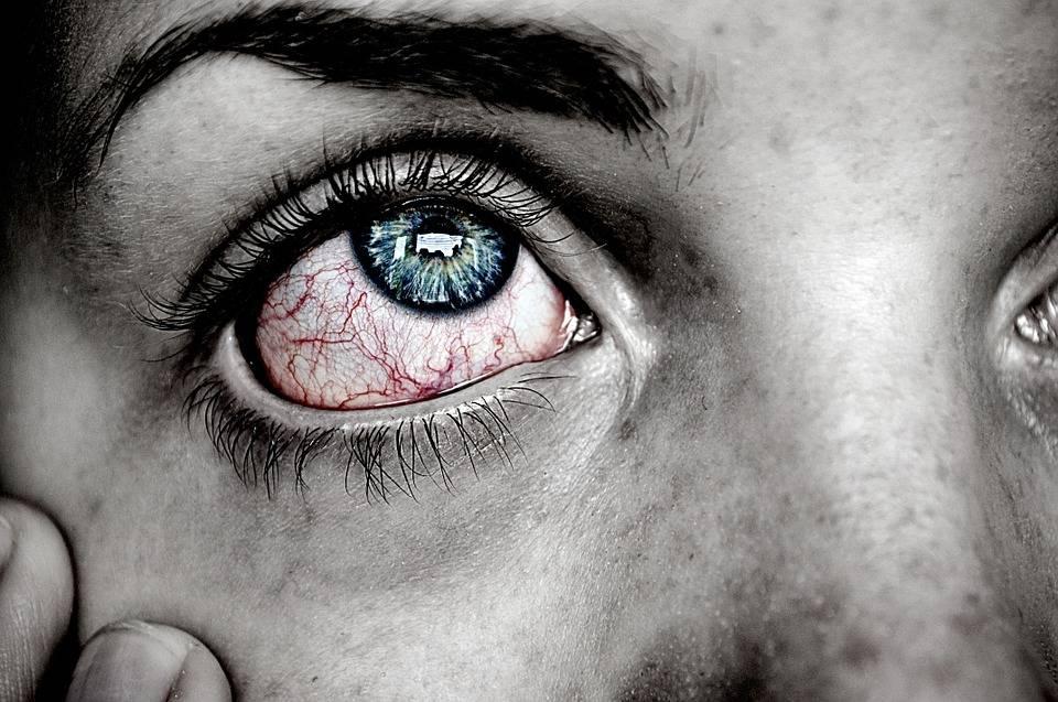 تجنب ٢٦ سبب وراء ألم العين والعلاج والوقاية منه ثقف نفسك