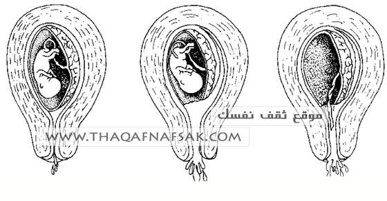 e11281b93bfe2 أسباب الإجهاض و طرق تثبيت الحمل