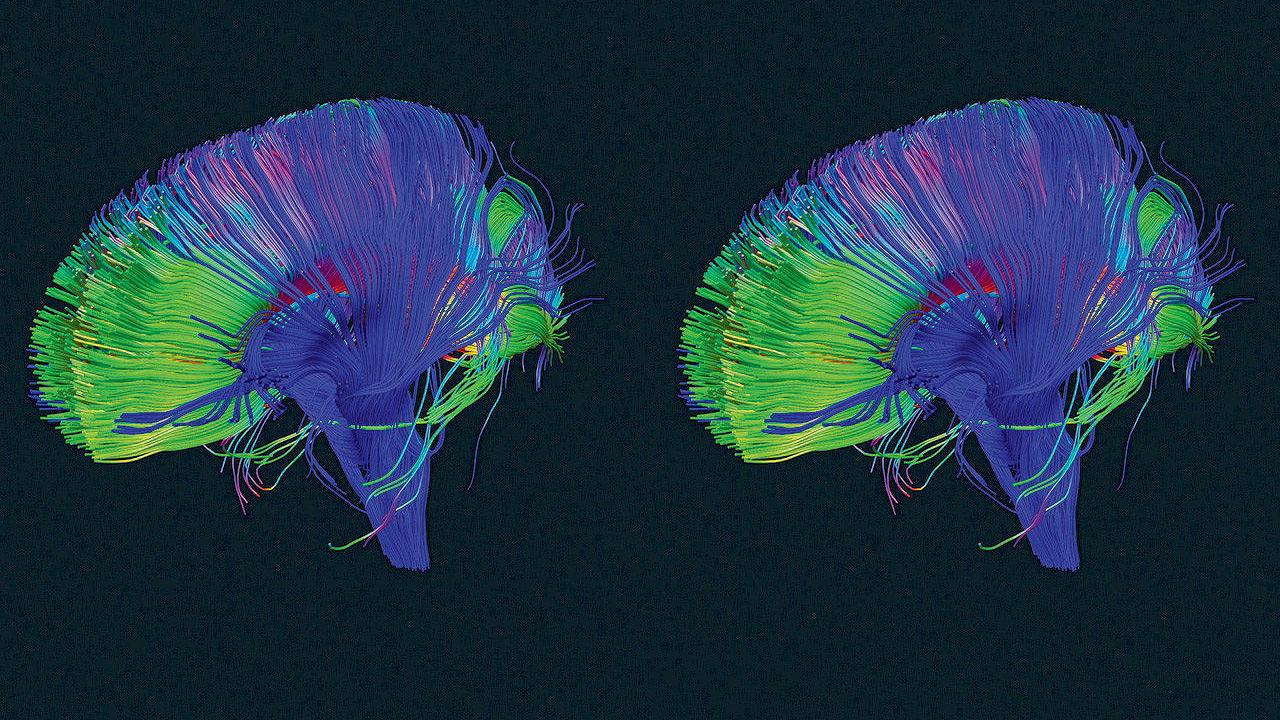 عقلك يحتوي على زر الازالة تعلم كيف تستخدمه، ثقف نفسك
