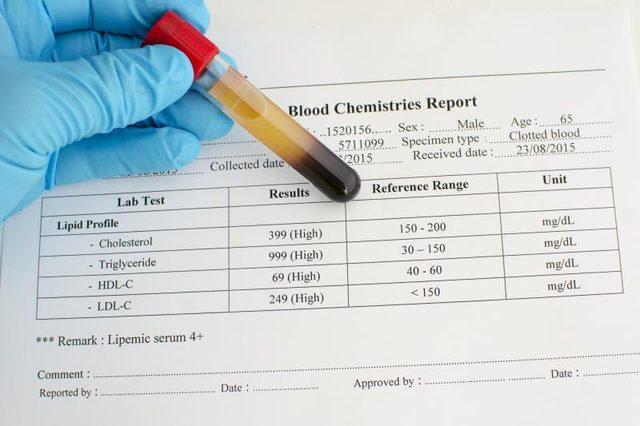 كيفية قراءة تحليل الكوليسترول في الدم ثقف نفسك