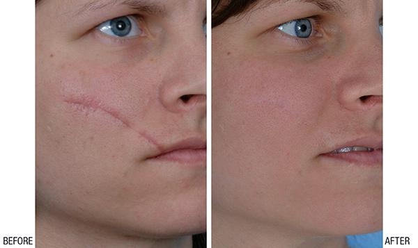طرق علاج اثار الجروح القديمة طبيعياً