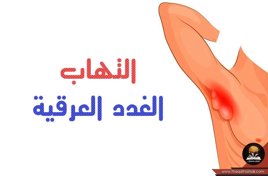 اعراض التهاب الغدد الليمفاوية 8