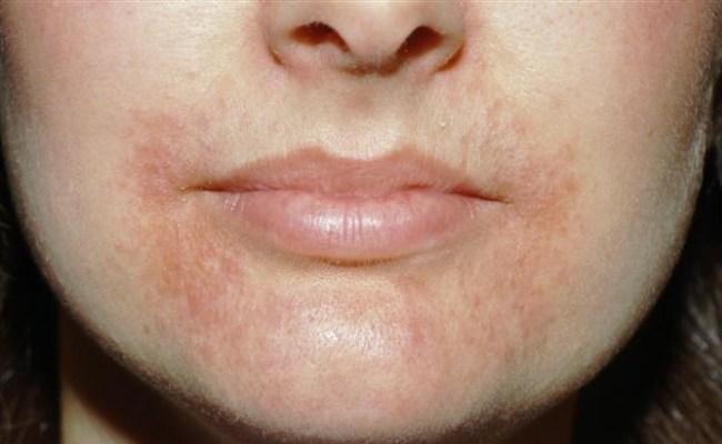 علاج إلتهاب الجلد حول الفم