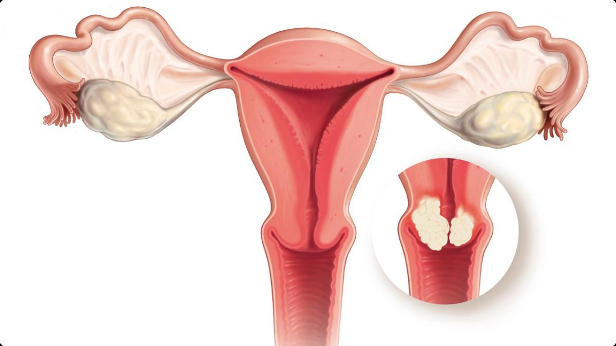 Image result for ما هو الورم الحليمي البشري وما هي أسبابه؟