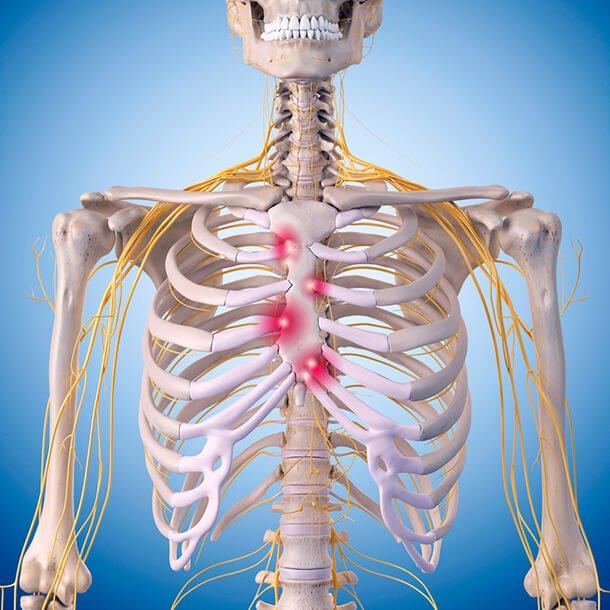 الألم تحت الضلوع أسبابه و العلاج المناسب ثقف نفسك