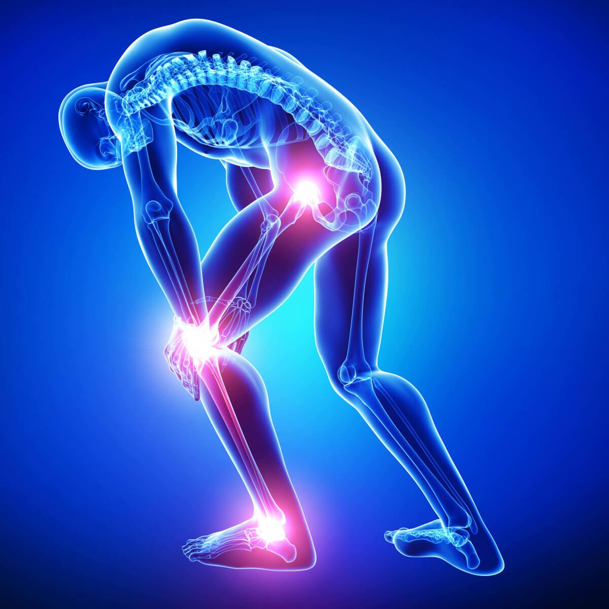 ما هي أسباب ألم الساق ثقف نفسك