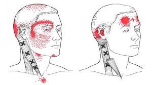 أسباب وعلاج صداع الجانب الايمن من الراس ثقف نفسك