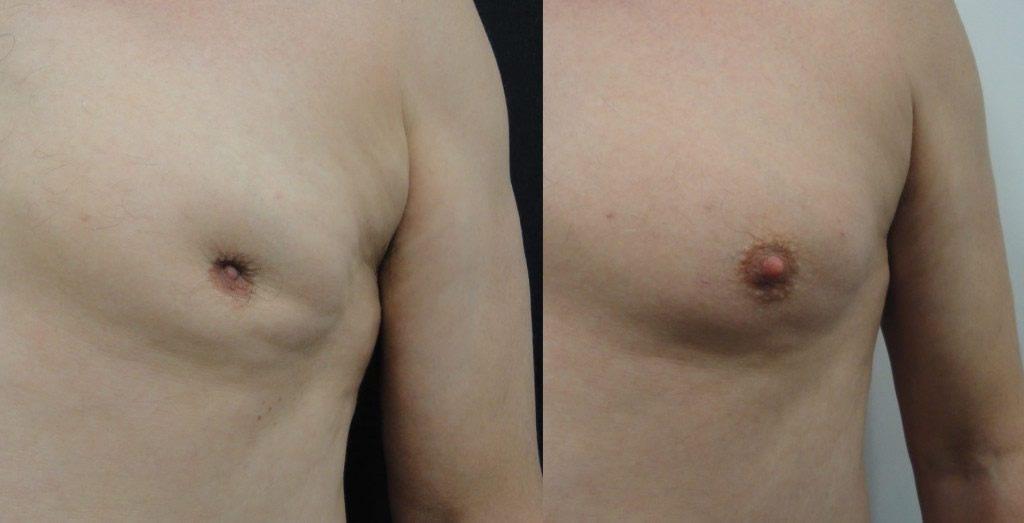ماذا تعرف عن سرطان الثدي لدي الرجال ٨ علامات