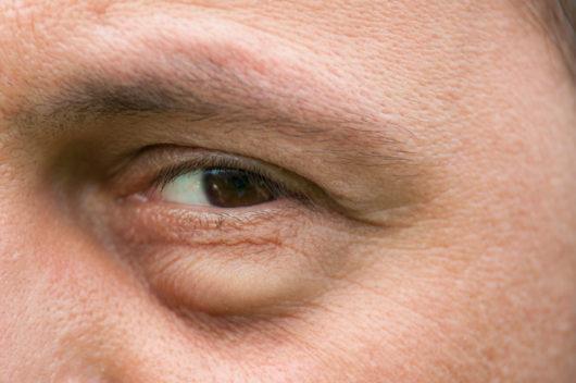 08fc0c34c علاج انتفاخ تحت العين بـ ١٨ وصفة