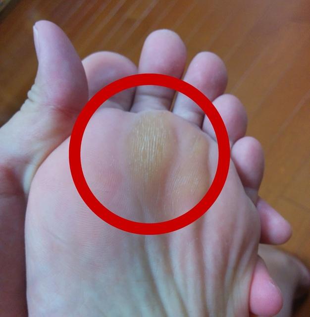 إزالة الجلد الميت